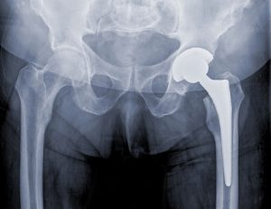 Warning Signs of a Defective Artificial Hip | Denver Personal Injury Attorney
