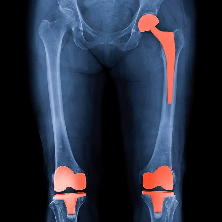 hip and knee replacement x-ray